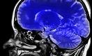Голова как в тумане: что делает COVID с мозгом